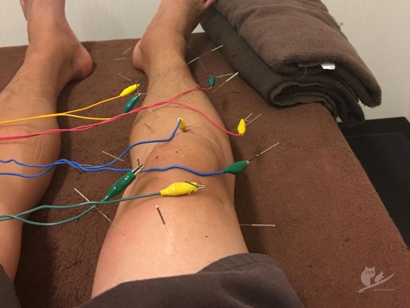 寺澤鍼灸整骨院で膝関節炎に鍼