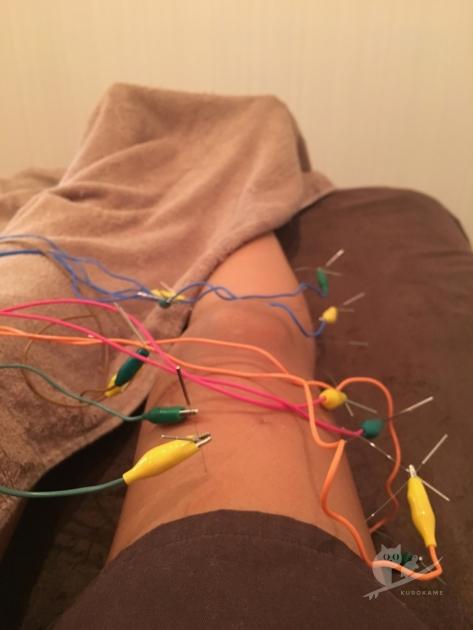 寺澤鍼灸整骨院にて右足・膝に電気鍼と整体でメンテナンス